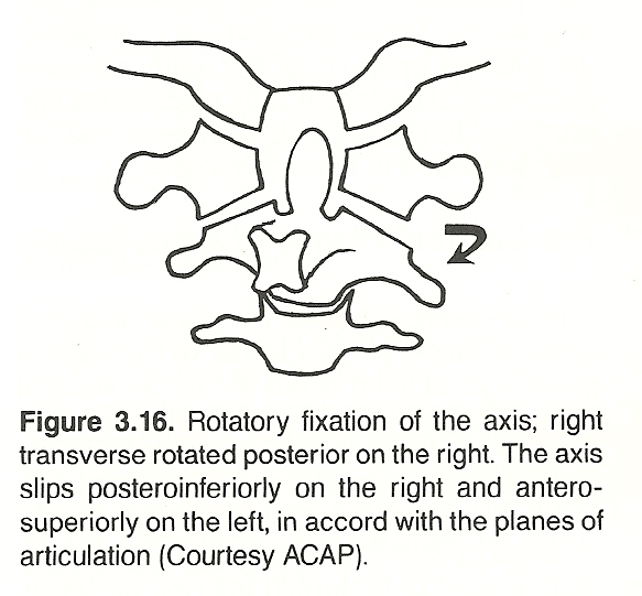 CHAPTER 3: THE CERVICAL SPINE