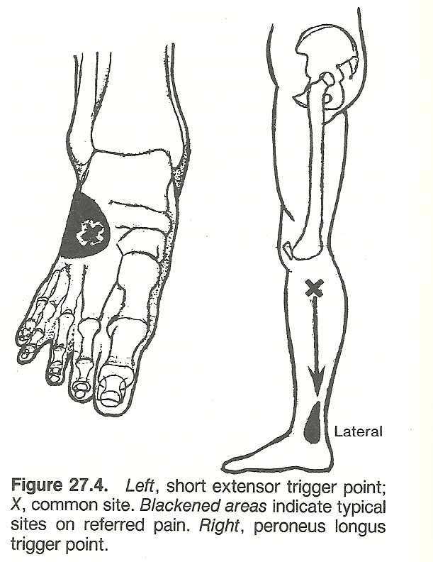 CHAPTER 27: LEG, ANKLE, AND FOOT INJURIES