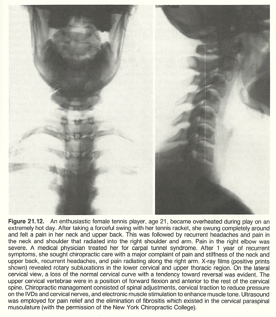 Chapter 21 Neck And Cervical Spine Injuries