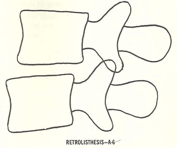 retrolisthesis of l5