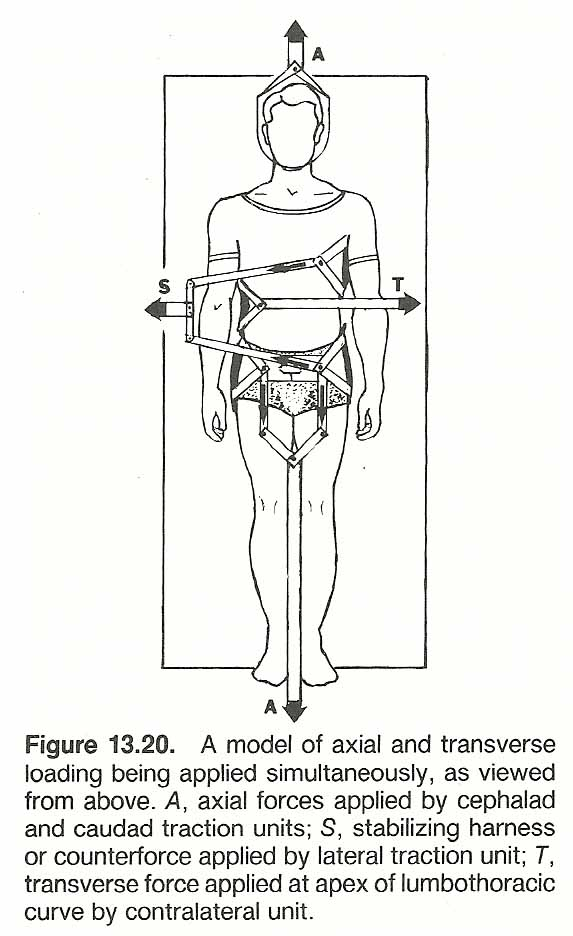 CHAPTER 13: SCOLIOSIS