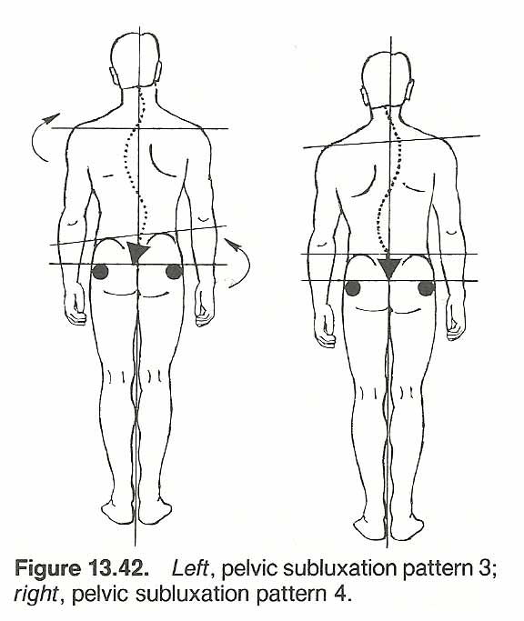 Biomechanical Considerations In The Therapy Of Thoracic