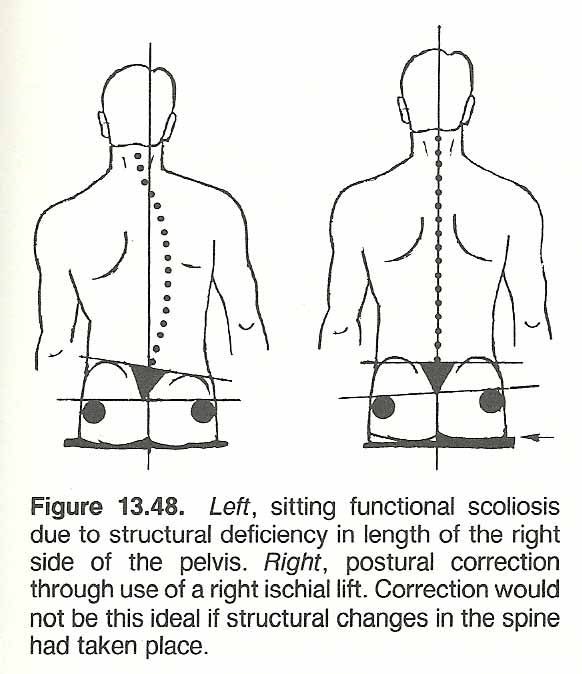Chapter 13 Scoliosis