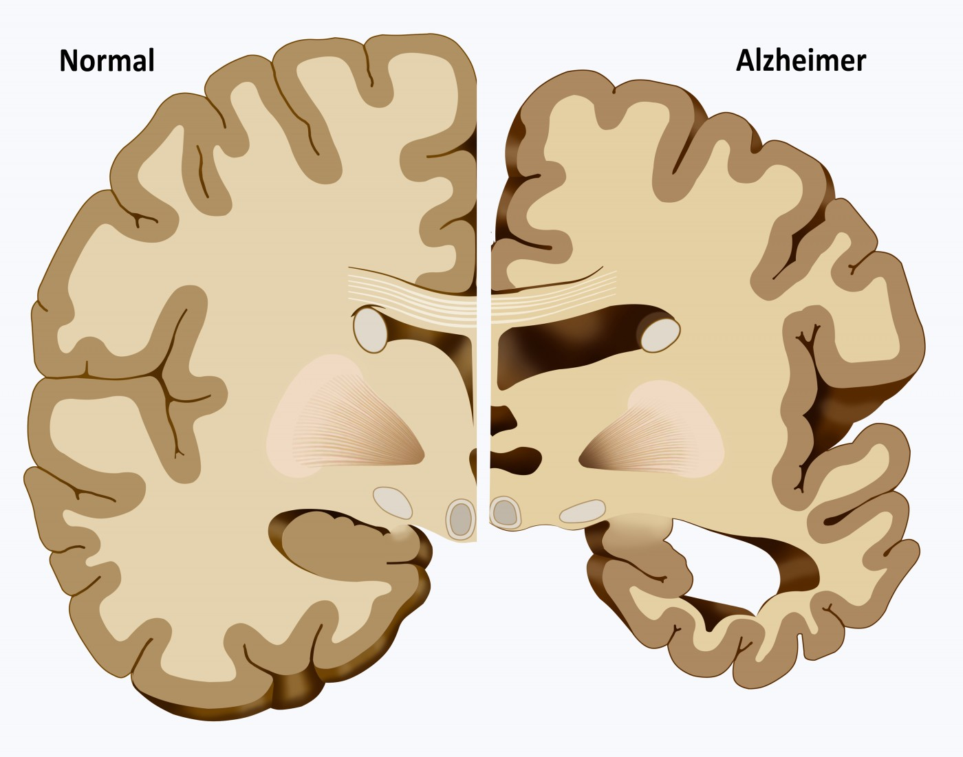 Evidence for Brain Glucose Dysregulation in Alzheimer's disease
