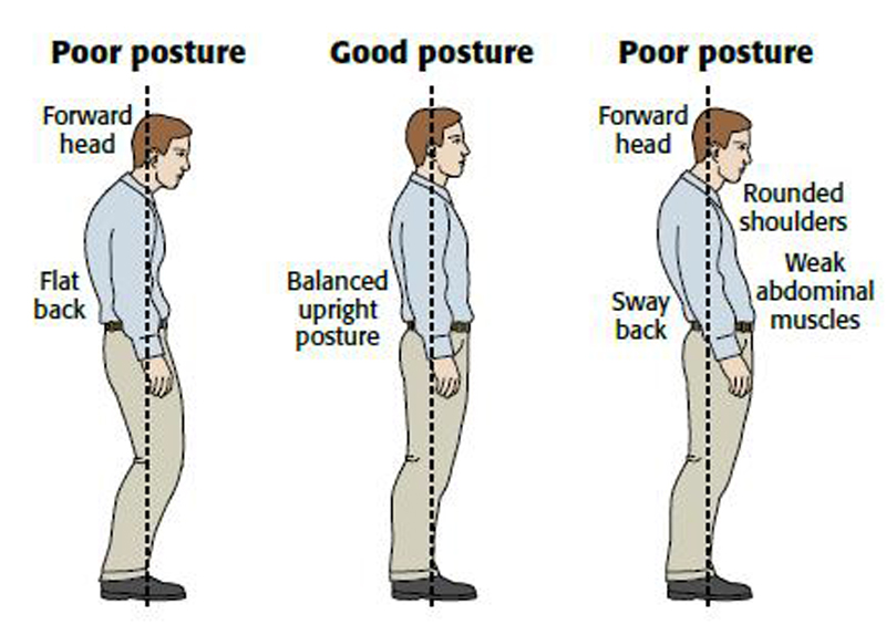 Sagittal Standing Posture and its Association with Spinal Pain