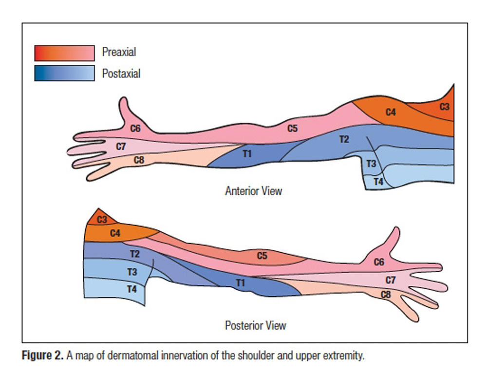 OBSERVED PATTERNS OF CERVICAL RADICULOPATHY: HOW OFTEN DO ... on lumbar dermatomes map, cervical mass, cervical lateral flexion, cervical lumbar, myotome map, cervical myotomes charts, peripheral nerve field, cervical nerve map, two-point discrimination, cervical precautions, blood–brain barrier, cervical facet dermatomes, cervical rfa, brachial plexus, cervical flexors, cervical plexus, cervical disc herniation, cervical epidural injection, cervical and thoracic dermatomes, cervical radiculopathy, cervical dermatomes anatomical chart, cervical pain map, cervical nerve dermatomes, cervical facet anatomy, cervical paraspinal region, somatosensory system,