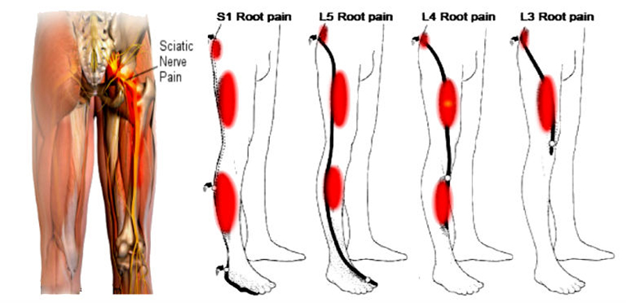 Pain Location Matters: The Impact of Leg Pain on Health Care Use, Work Disability and Quality of Life in Patients with Low Back Pain