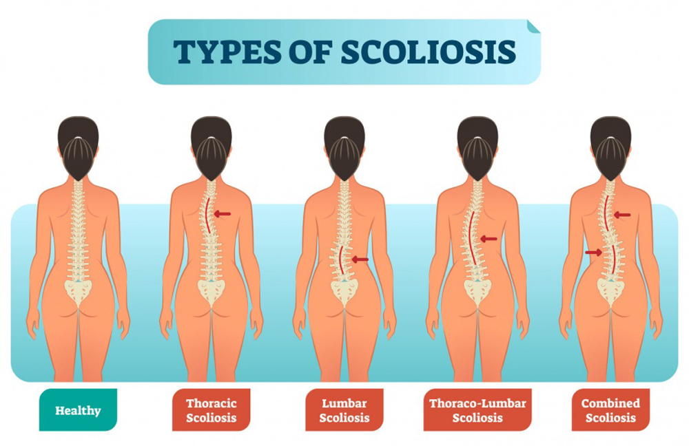 The Role of Vitamin D in the Pathogenesis of Adolescent Idiopathic Scoliosis